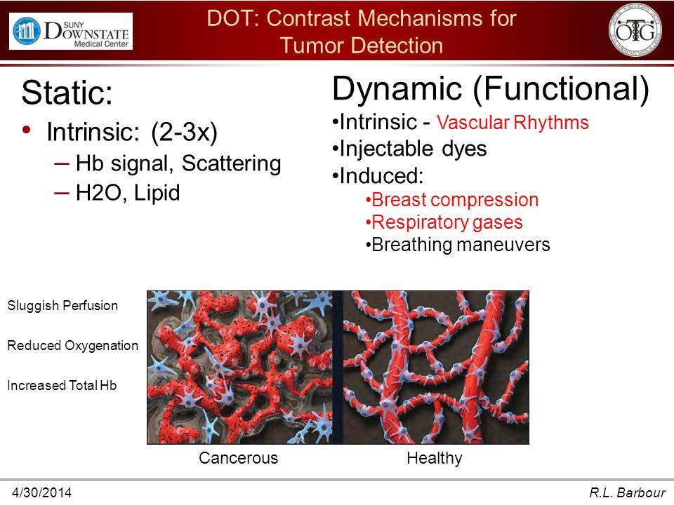 4/30/2014R.L. Barbour DOT: Contrast Mechanisms for Tumor Detection Static: Intrinsic: (2-3x) – Hb signal, Scattering – H2O, Lipid Dynamic (Functional)