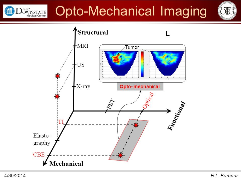 4/30/2014R.L. Barbour Functional Structural Mechanical MRI US X-ray TI Elasto- graphy CBE Optical PET L Tumor Opto- mechanical Opto-Mechanical Imaging