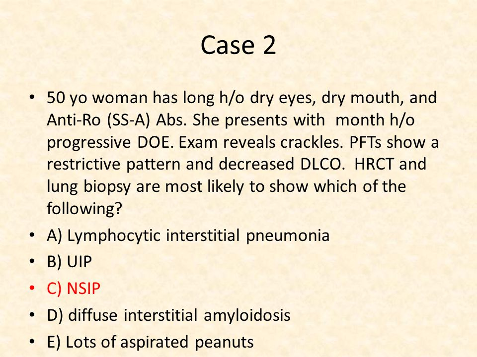 Case 2 50 yo woman has long h/o dry eyes, dry mouth, and Anti-Ro (SS-A) Abs.