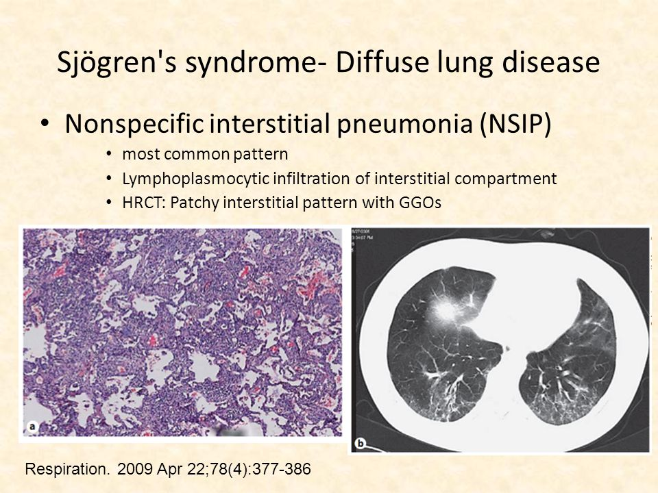 Sjögren s syndrome- Diffuse lung disease Nonspecific interstitial pneumonia (NSIP) most common pattern Lymphoplasmocytic infiltration of interstitial compartment HRCT: Patchy interstitial pattern with GGOs Respiration.