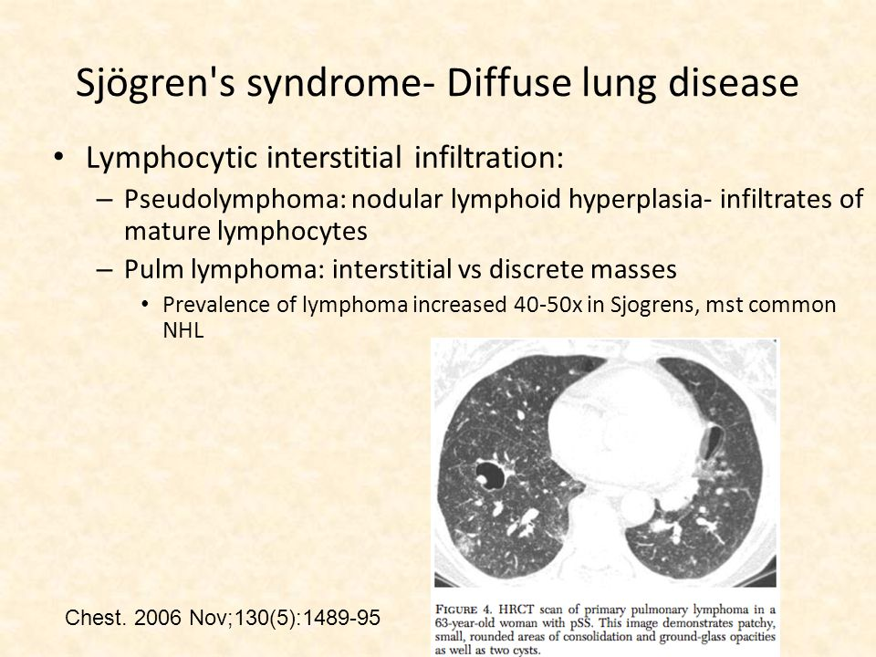 Lymphocytic interstitial infiltration: – Pseudolymphoma: nodular lymphoid hyperplasia- infiltrates of mature lymphocytes – Pulm lymphoma: interstitial vs discrete masses Prevalence of lymphoma increased 40-50x in Sjogrens, mst common NHL Chest.