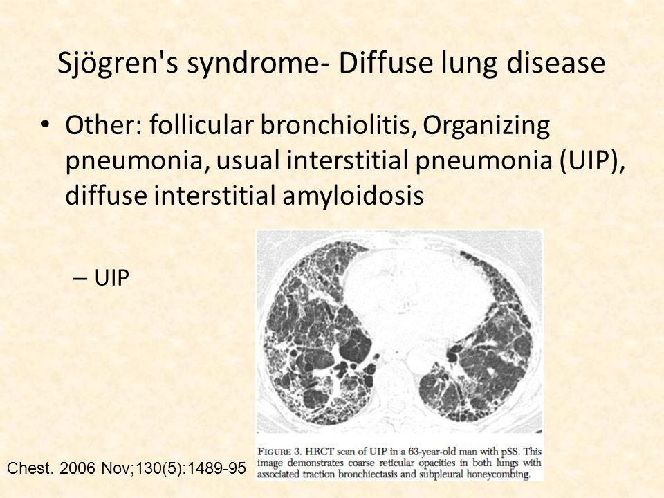Other: follicular bronchiolitis, Organizing pneumonia, usual interstitial pneumonia (UIP), diffuse interstitial amyloidosis – UIP Chest.
