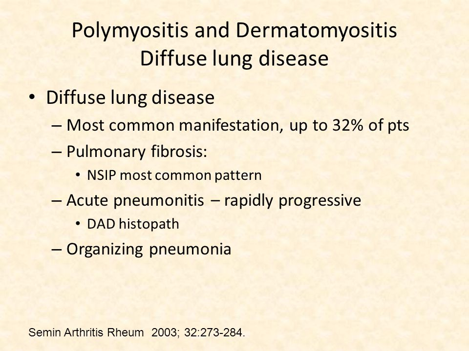 Polymyositis and Dermatomyositis Diffuse lung disease Diffuse lung disease – Most common manifestation, up to 32% of pts – Pulmonary fibrosis: NSIP most common pattern – Acute pneumonitis – rapidly progressive DAD histopath – Organizing pneumonia Semin Arthritis Rheum 2003; 32:273-284.