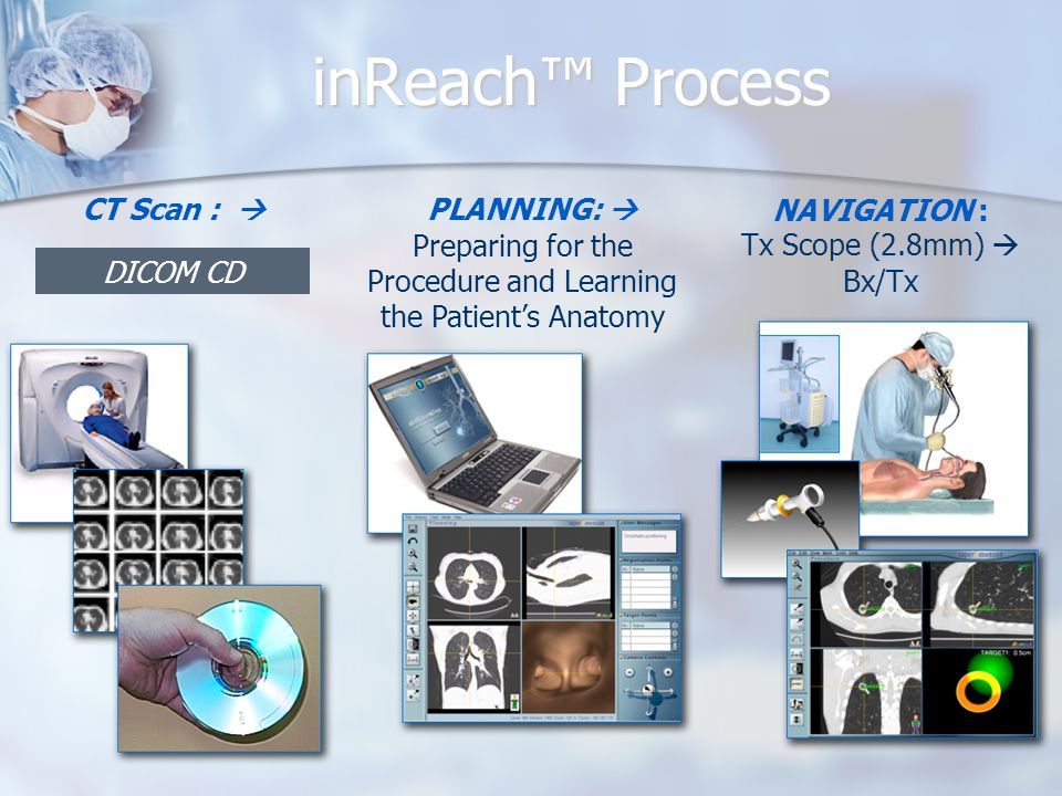 inReach™ Process DICOM CD PLANNING:  Preparing for the Procedure and Learning the Patient's Anatomy NAVIGATION : Tx Scope (2.8mm)  Bx/Tx CT Scan : 