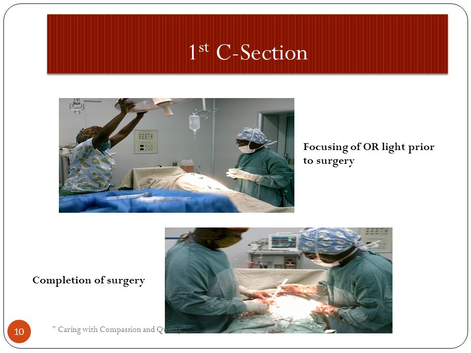 1 st C-Section Focusing of OR light prior to surgery Completion of surgery Caring with Compassion and Quality 10