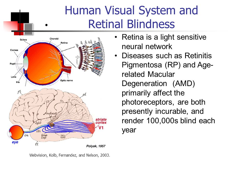 Human Visual System and Retinal Blindness Retina is a light sensitive neural network Diseases such as Retinitis Pigmentosa (RP) and Age- related Macular Degeneration (AMD) primarily affect the photoreceptors, are both presently incurable, and render 100,000s blind each year Webvision, Kolb, Fernandez, and Nelson, 2003.