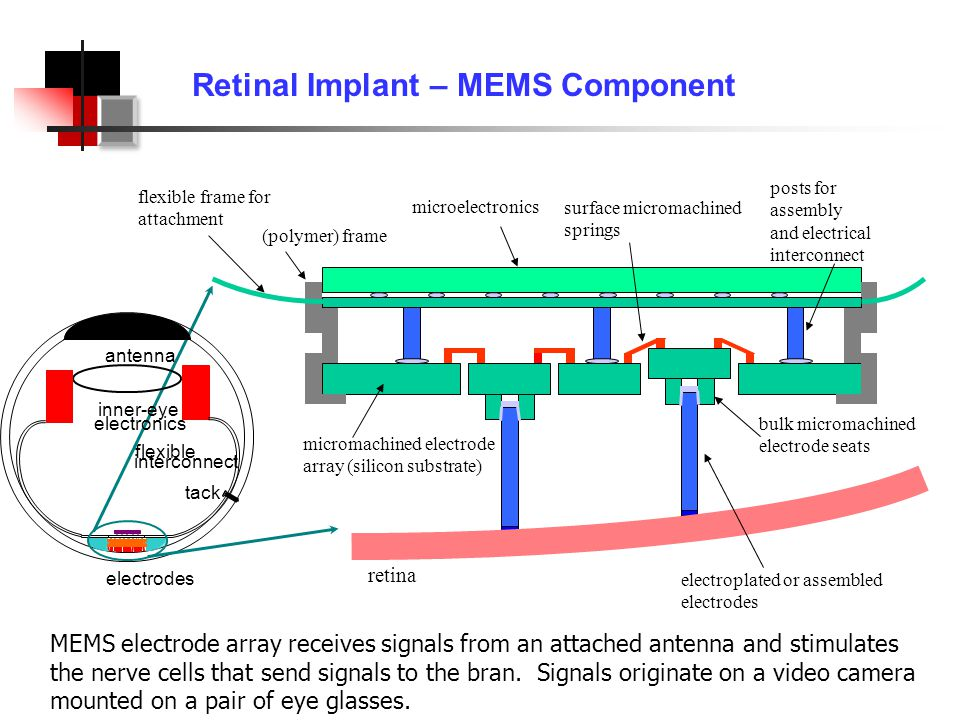 Retinal Implant – MEMS Component microelectronics electroplated or assembled electrodes bulk micromachined electrode seats surface micromachined springs (polymer) frame flexible frame for attachment micromachined electrode array (silicon substrate) retina posts for assembly and electrical interconnect electrodes flexible interconnect tack antenna inner-eye electronics MEMS electrode array receives signals from an attached antenna and stimulates the nerve cells that send signals to the bran.