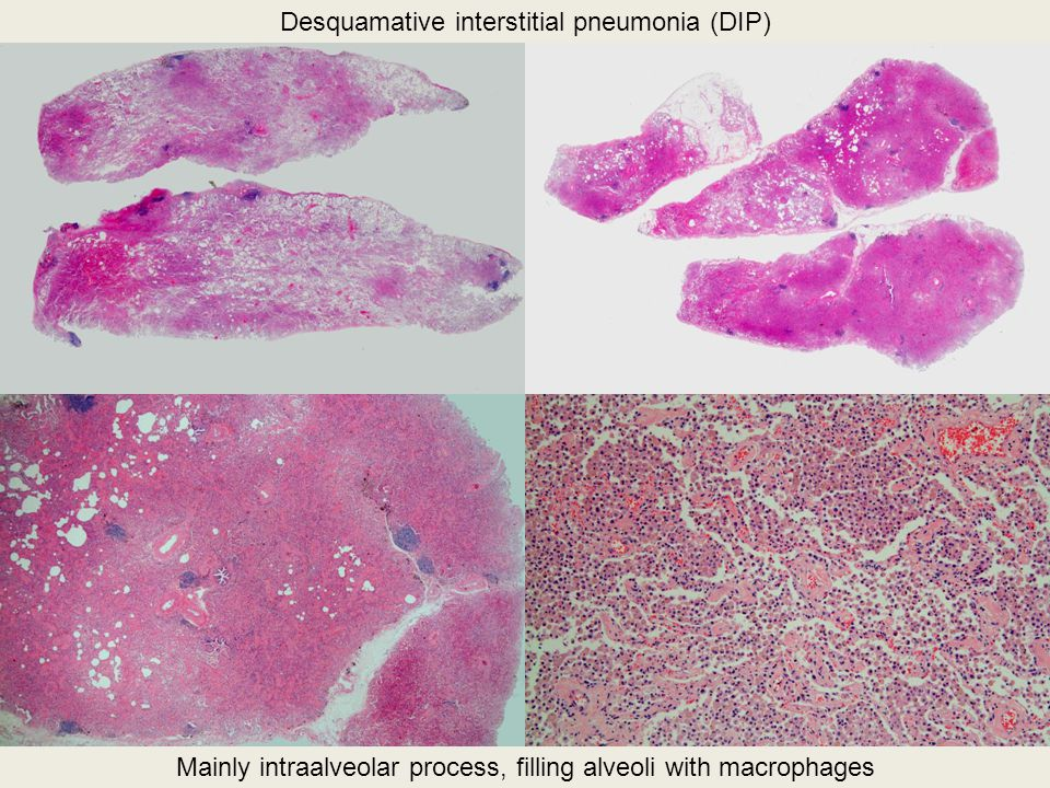 Desquamative interstitial pneumonia (DIP) Mainly intraalveolar process, filling alveoli with macrophages