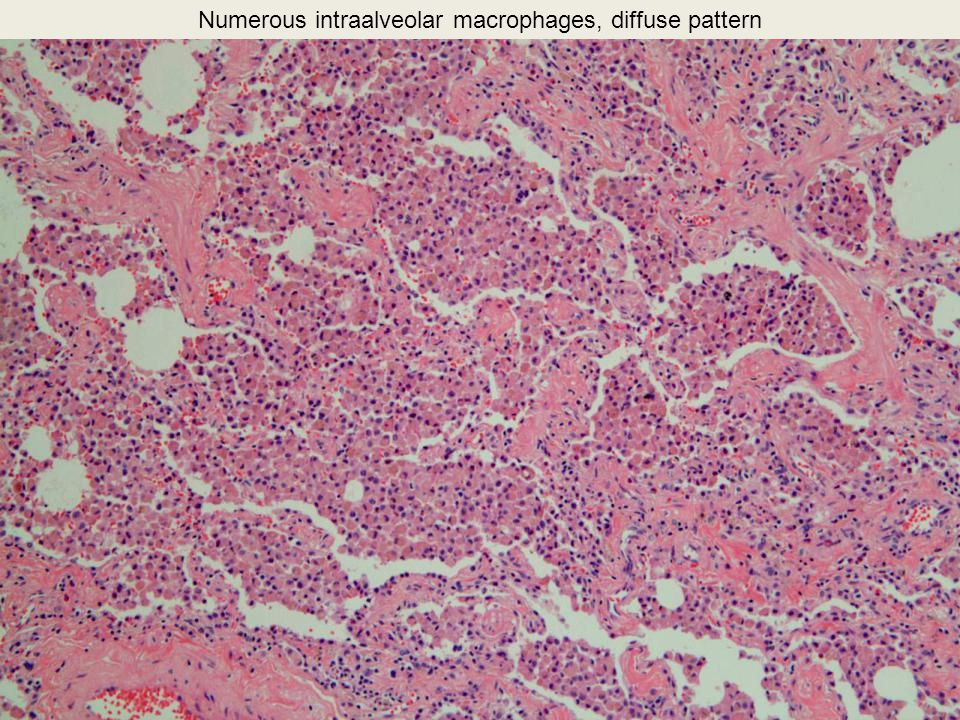 Numerous intraalveolar macrophages, diffuse pattern