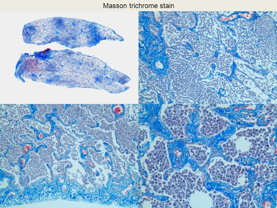 Masson trichrome stain