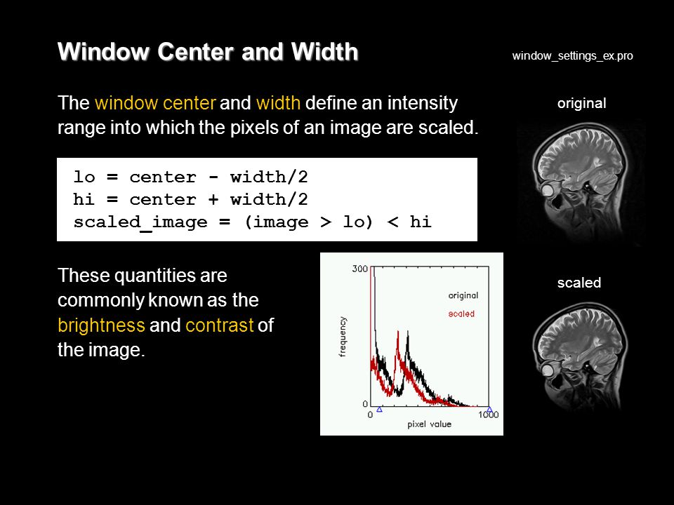 Window Center and Width The window center and width define an intensity range into which the pixels of an image are scaled.