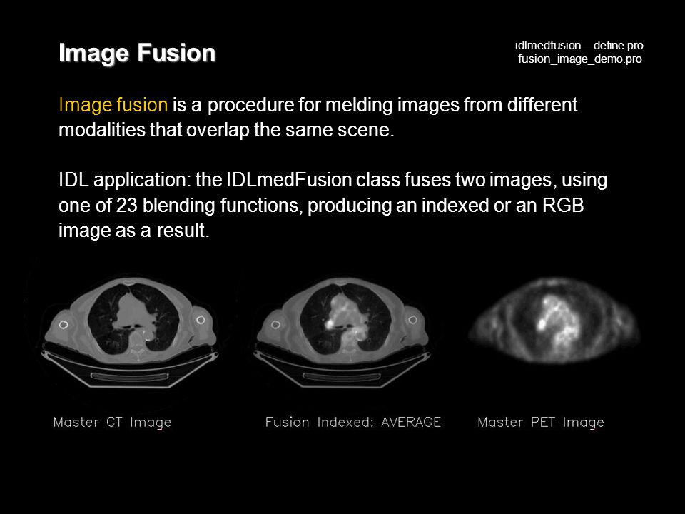 Image Fusion Image fusion is a procedure for melding images from different modalities that overlap the same scene.