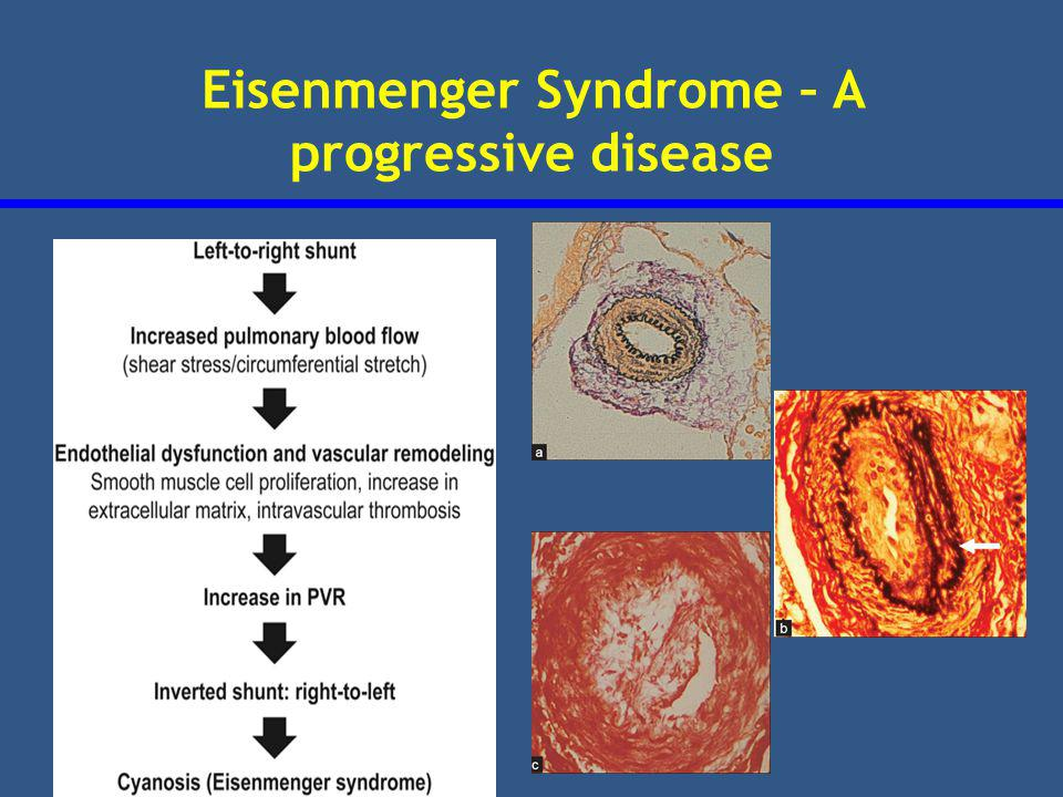 Eisenmenger Syndrome – A progressive disease
