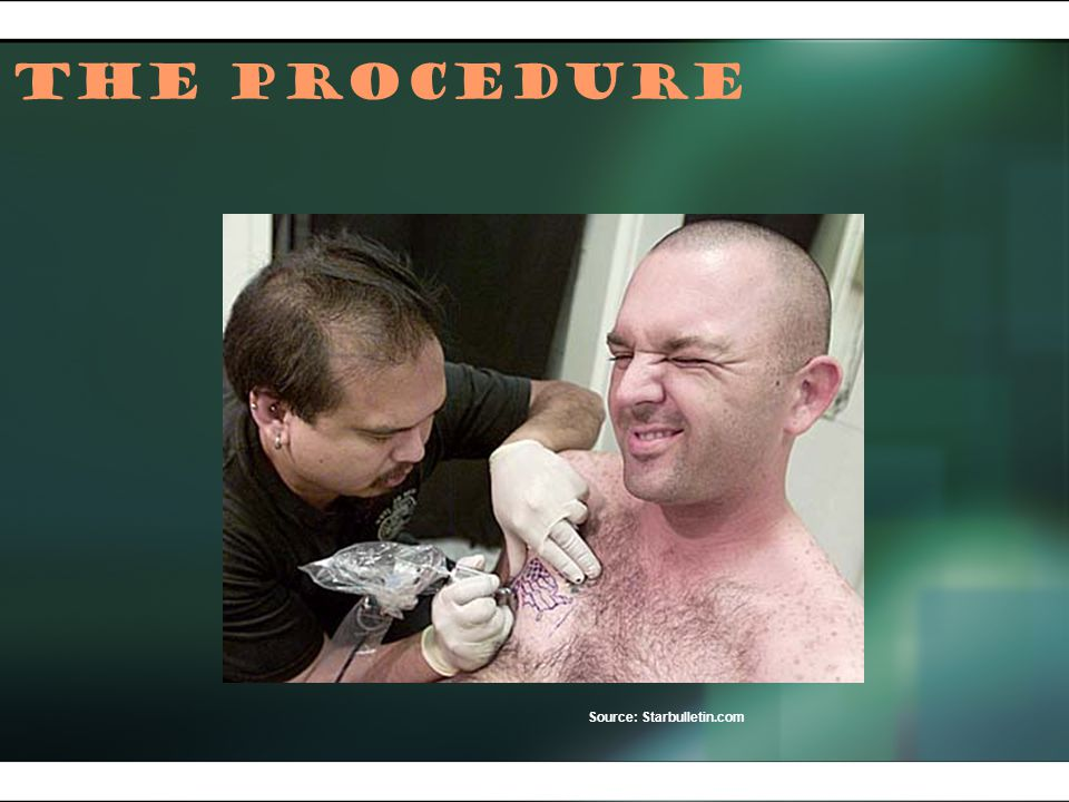 The Procedure Source: Starbulletin.com