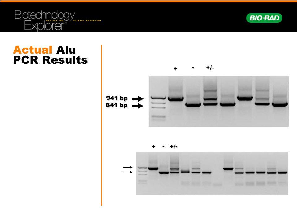 Actual Alu PCR Results 941 bp 641 bp - +/- + + - +/-