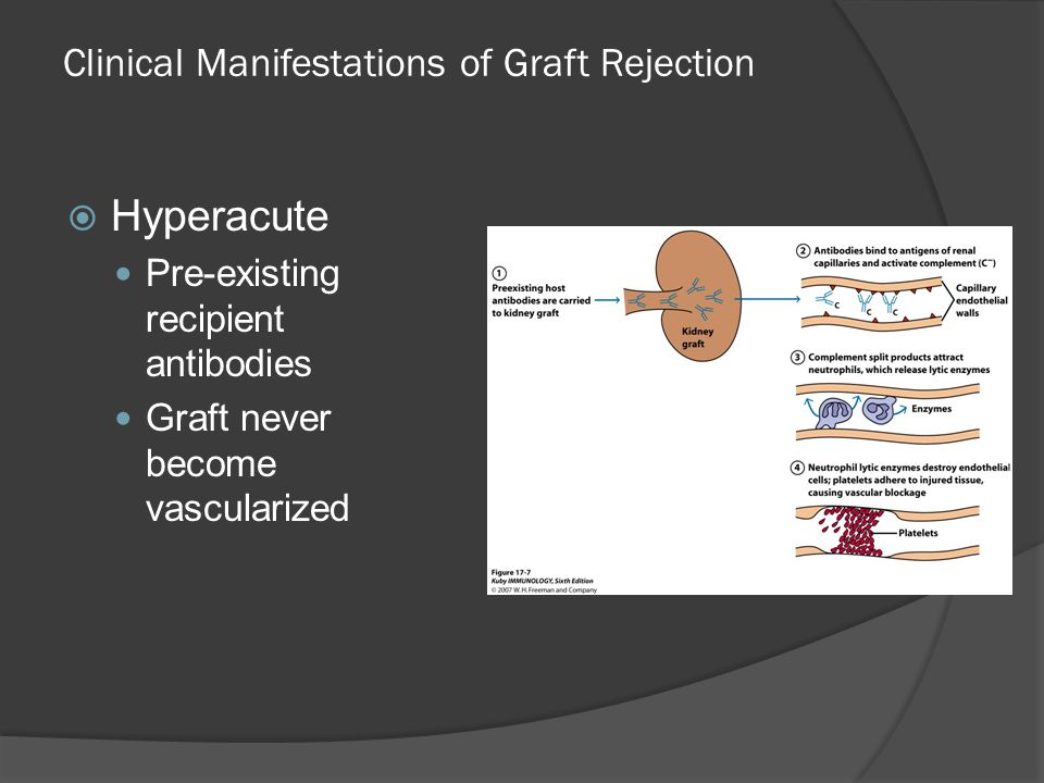 Clinical Manifestations of Graft Rejection  Hyperacute Pre-existing recipient antibodies Graft never become vascularized