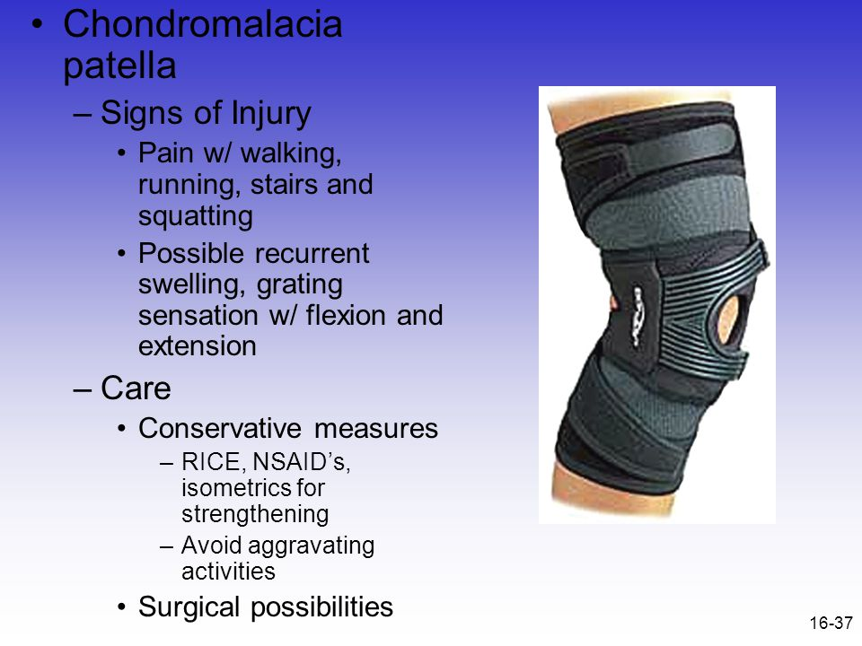 16-37 Chondromalacia patella –Signs of Injury Pain w/ walking, running, stairs and squatting Possible recurrent swelling, grating sensation w/ flexion