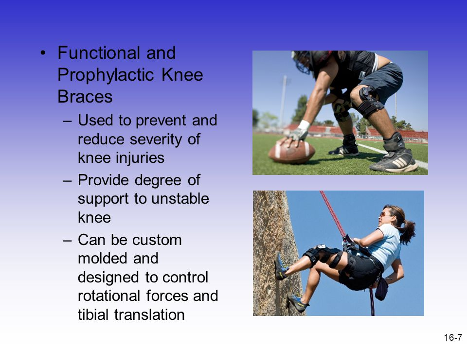 16-8 Assessing the Knee Joint Determining the mechanism of injury is critical History- Current Injury –Past history –Mechanism- what position was your body in.