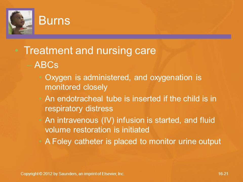 Burns Treatment and nursing care –ABCs Oxygen is administered, and oxygenation is monitored closely An endotracheal tube is inserted if the child is i