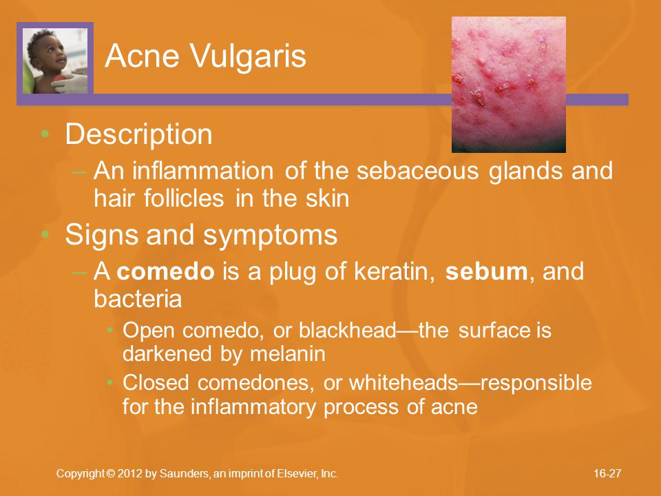 Acne Vulgaris Description –An inflammation of the sebaceous glands and hair follicles in the skin Signs and symptoms –A comedo is a plug of keratin, s
