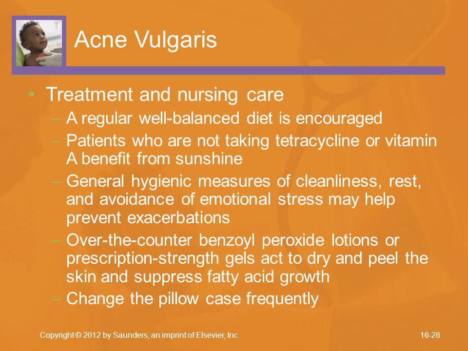 Acne Vulgaris Treatment and nursing care –A regular well-balanced diet is encouraged –Patients who are not taking tetracycline or vitamin A benefit fr