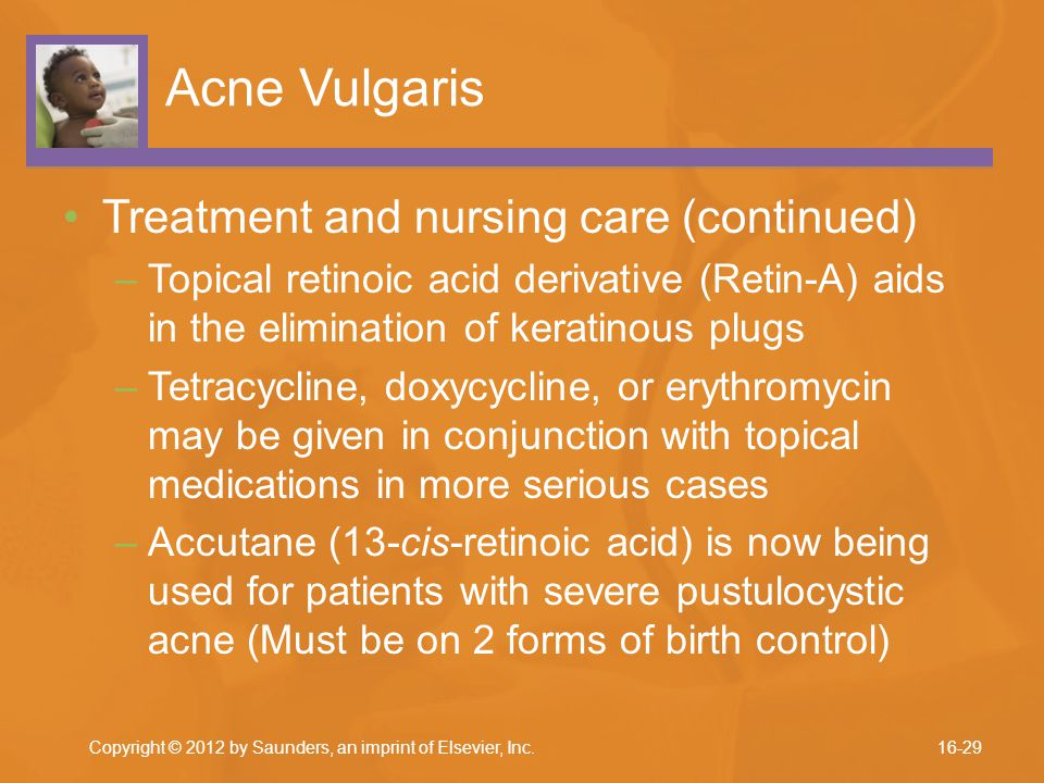 Acne Vulgaris Treatment and nursing care (continued) –Topical retinoic acid derivative (Retin-A) aids in the elimination of keratinous plugs –Tetracyc