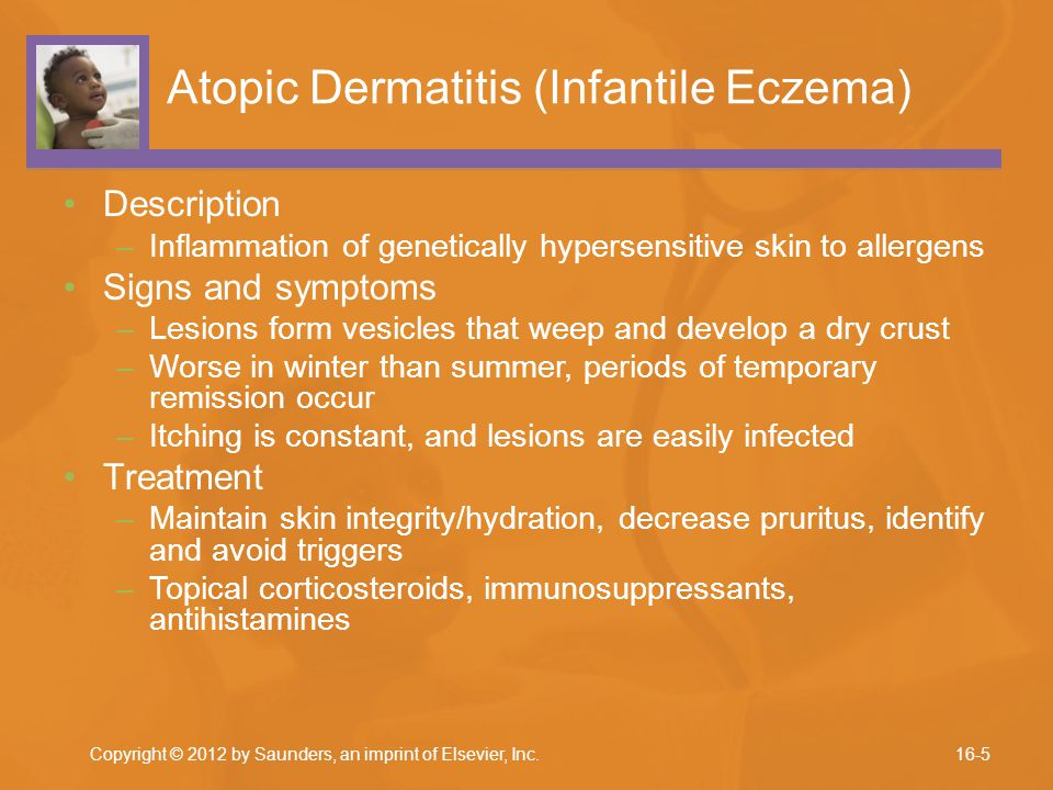 Atopic Dermatitis (Infantile Eczema) Description –Inflammation of genetically hypersensitive skin to allergens Signs and symptoms –Lesions form vesicl