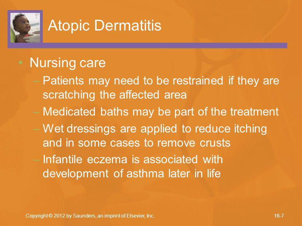 Atopic Dermatitis Nursing care –Patients may need to be restrained if they are scratching the affected area –Medicated baths may be part of the treatm
