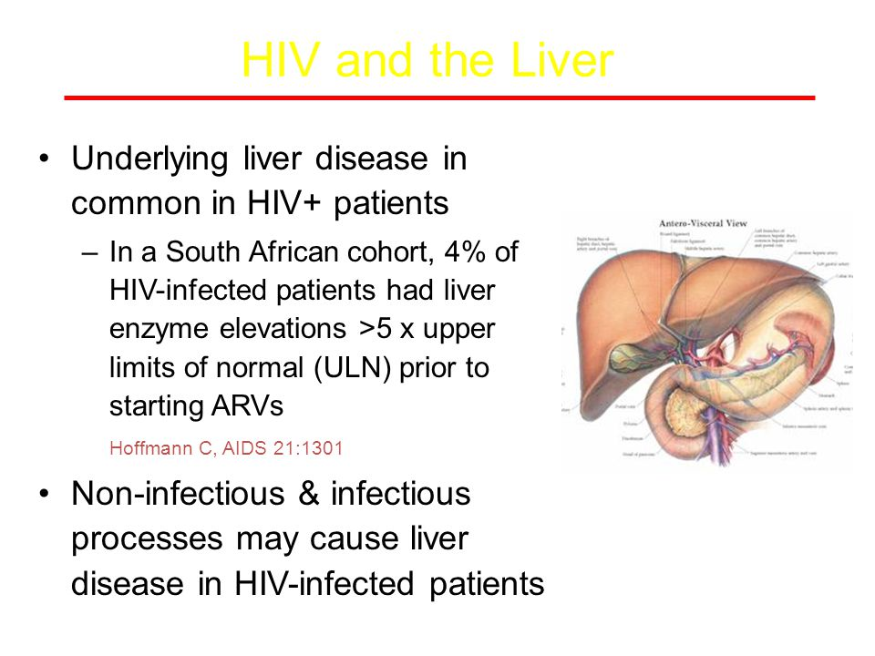 DILI: ARV hepatotoxicity 14-20% of HIV+ pts starting ARVs have elevations in LFTs 2-10% need to interrupt ART because of significant hepatotoxicity Risk factors: elevated baseline transaminases; HBV or HCV; concomitant hepatotoxic drugs (anti-TB drugs, anticonvulsants, bactrim, dapsone, erythromycin, augmentin, azoles).