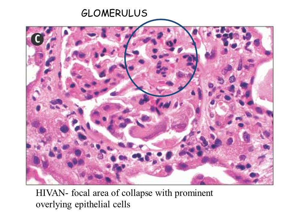 HIVAN- focal area of collapse with prominent overlying epithelial cells GLOMERULUS