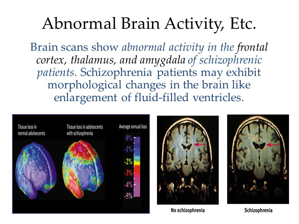 Understanding Schizophrenia Schizophrenia is a disease of the brain exhibited by the symptoms of the mind.