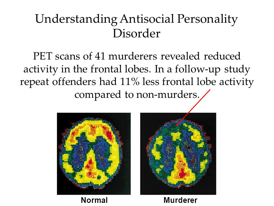 Understanding Antisocial Personality Disorder Like mood disorders and schizophrenia, antisocial personality disorder has biological and psychological reasons.
