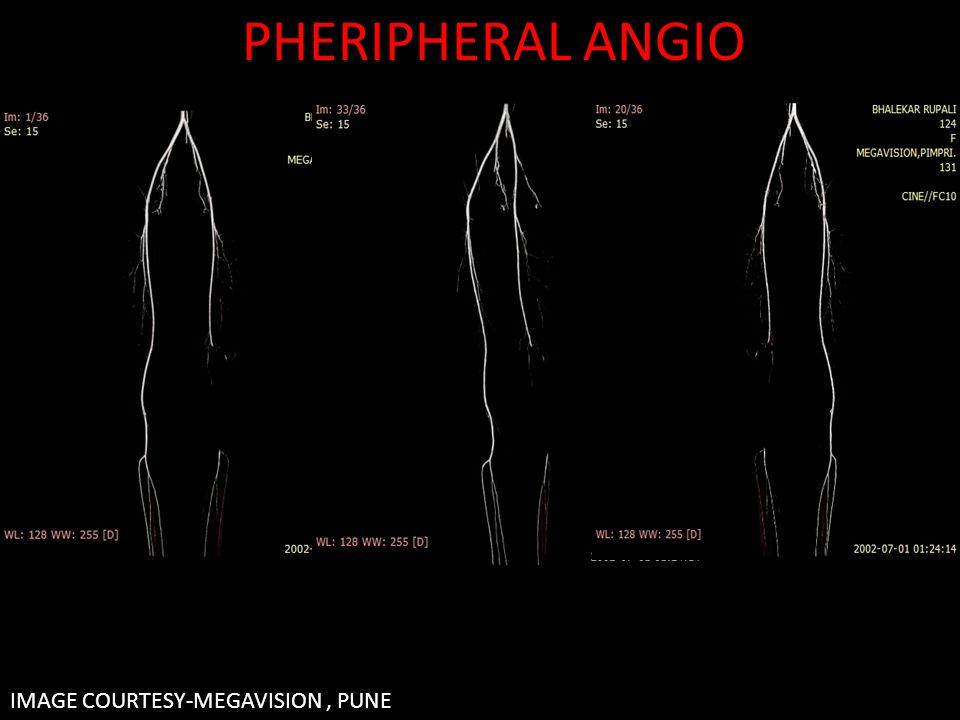 IMAGE COURTESY-MEGAVISION, PUNE PHERIPHERAL ANGIO