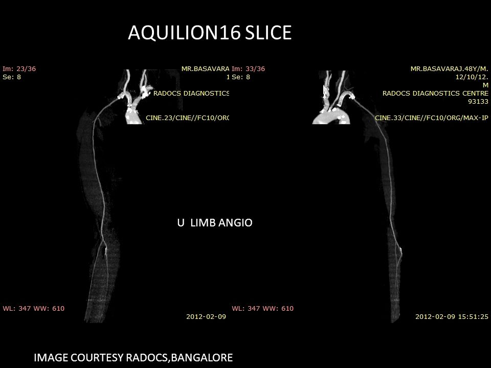 AQUILION16 SLICE U LIMB ANGIO IMAGE COURTESY RADOCS,BANGALORE