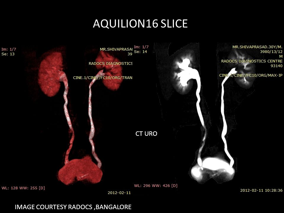 AQUILION16 SLICE CT URO IMAGE COURTESY RADOCS,BANGALORE