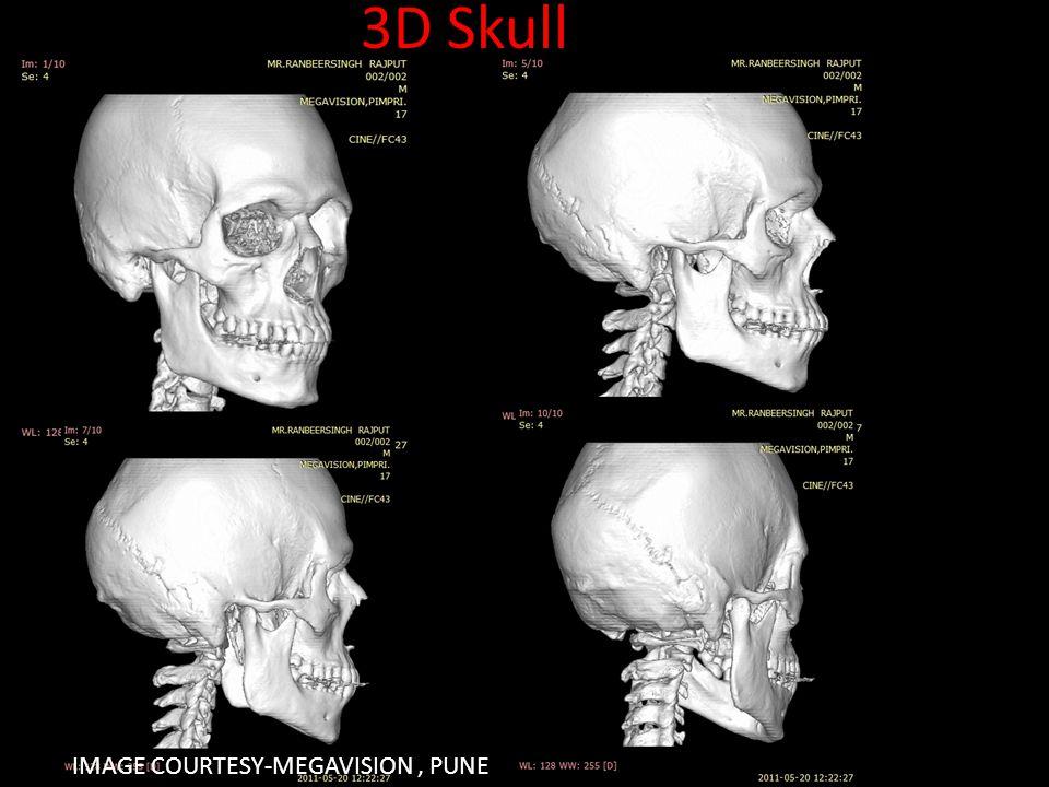 IMAGE COURTESY-MEGAVISION, PUNE 3D Skull