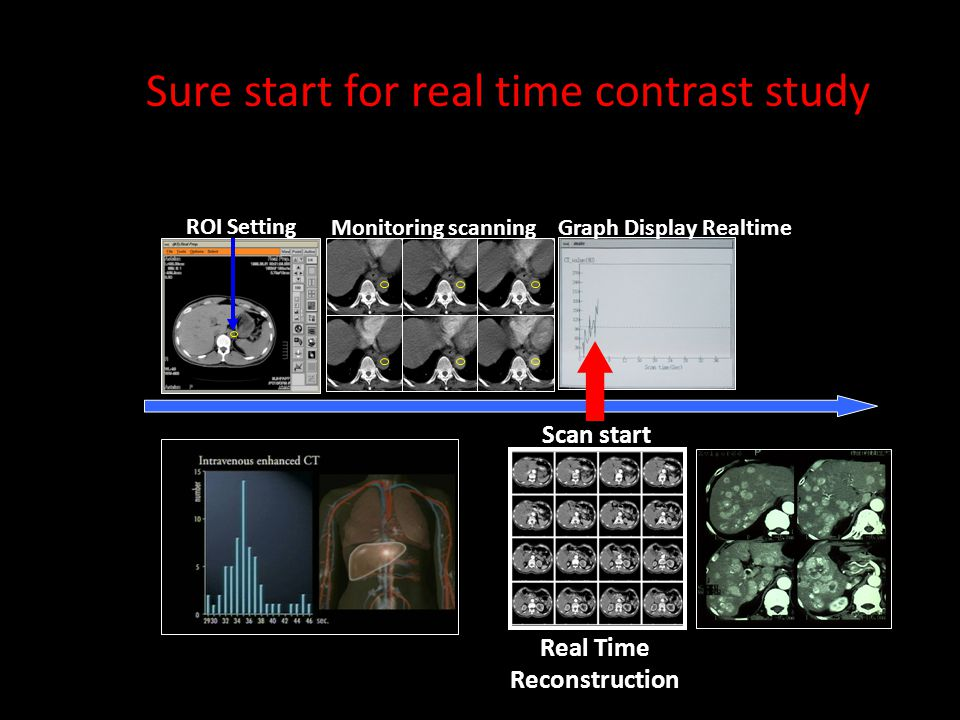 ROI Setting Real Time Reconstruction Scan start Graph Display RealtimeMonitoring scanning Sure start for real time contrast study