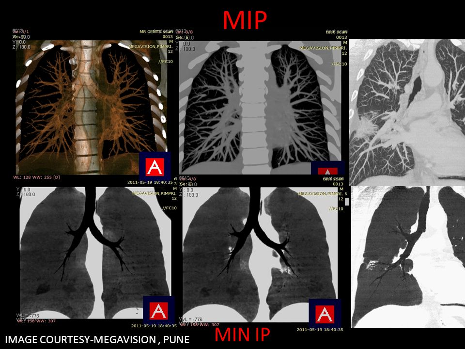 MIP IMAGE COURTESY-MEGAVISION, PUNE MIN IP