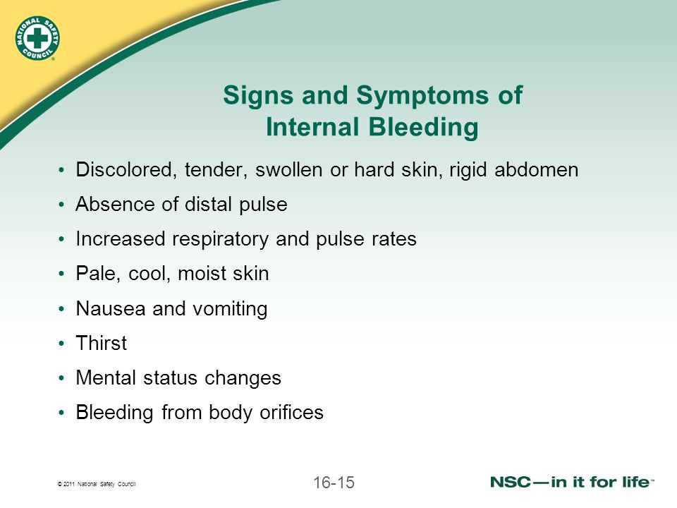 © 2011 National Safety Council 16-15 Signs and Symptoms of Internal Bleeding Discolored, tender, swollen or hard skin, rigid abdomen Absence of distal