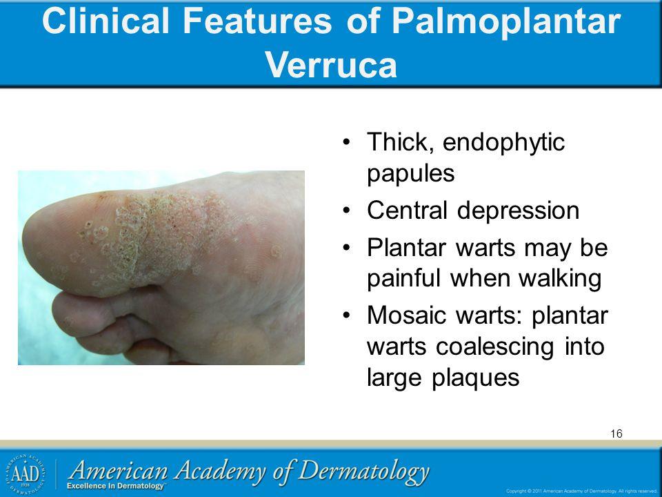 Clinical Features of Palmoplantar Verruca Thick, endophytic papules Central depression Plantar warts may be painful when walking Mosaic warts: plantar