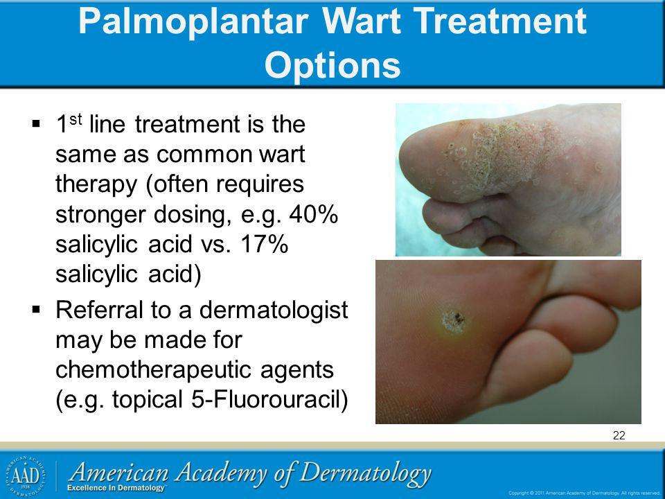 Palmoplantar Wart Treatment Options  1 st line treatment is the same as common wart therapy (often requires stronger dosing, e.g. 40% salicylic acid