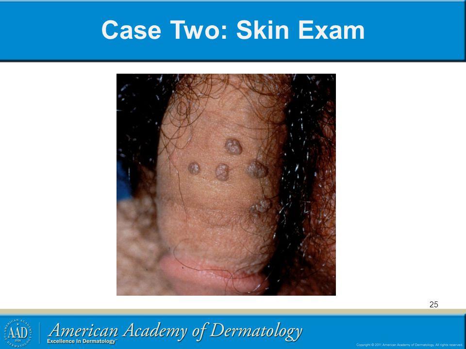 Case Two: Skin Exam 25