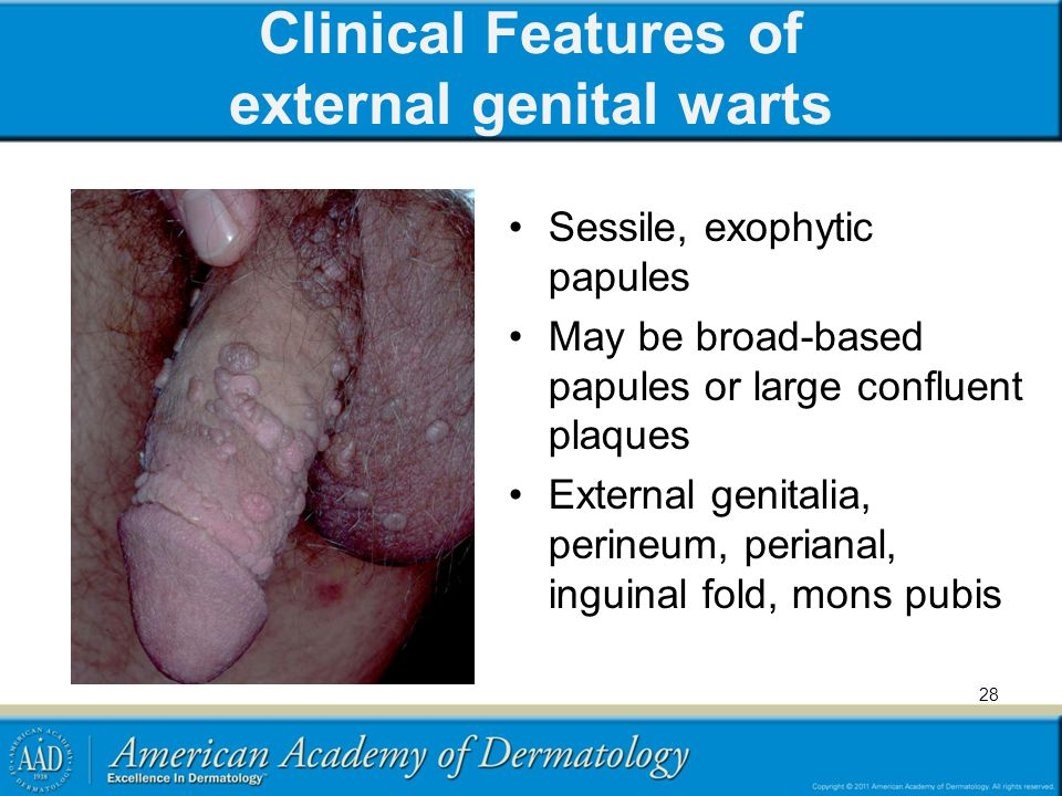 Clinical Features of external genital warts Sessile, exophytic papules May be broad-based papules or large confluent plaques External genitalia, perin
