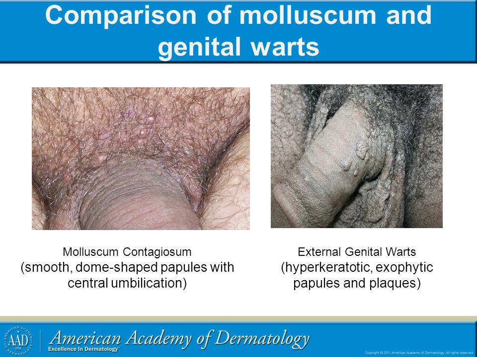 Comparison of molluscum and genital warts Molluscum Contagiosum (smooth, dome-shaped papules with central umbilication) External Genital Warts (hyperk