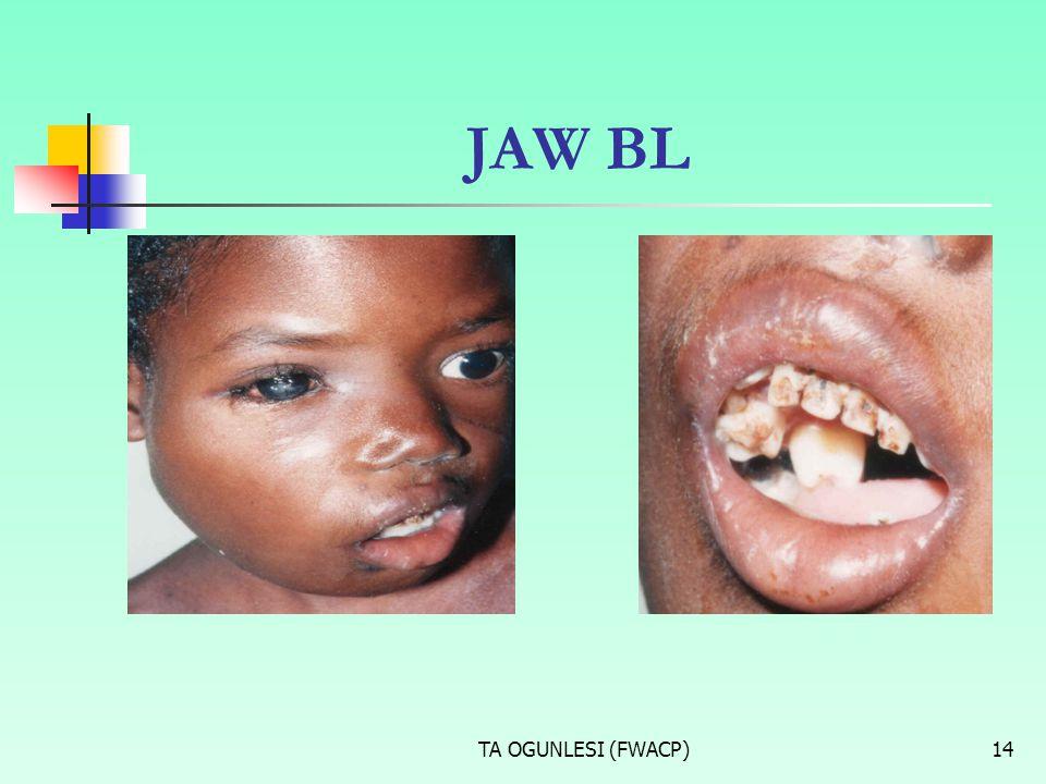 TA OGUNLESI (FWACP)14 JAW BL