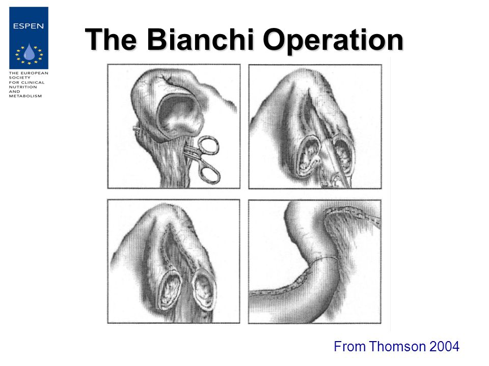The Bianchi Operation From Thomson 2004