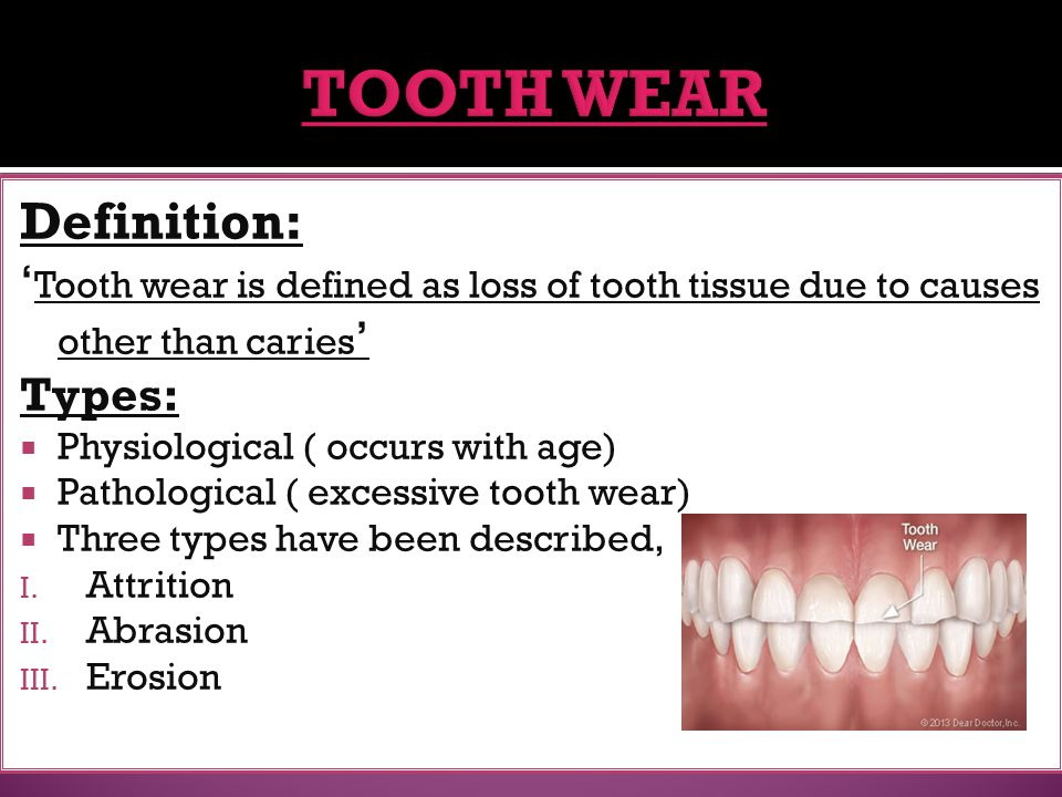  Diagnose the most likely cause  In many cases the causes may be multiple  Abrasion caused by tooth brushing may be reduced by improving brushing technique  A careful history and detailed notes on the position of erosion are important in order to determine the exact cause  Dietary analysis and advice are essential for those suffering from erosion due to dietary causes