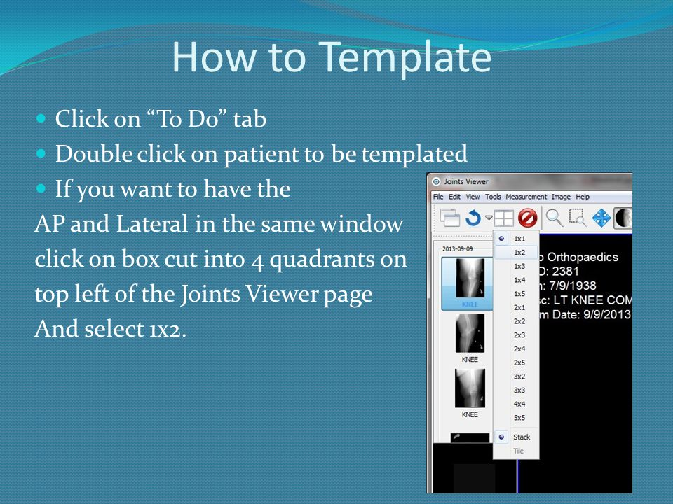 """How to Template Click on """"To Do"""" tab Double click on patient to be templated If you want to have the AP and Lateral in the same window click on box cu"""