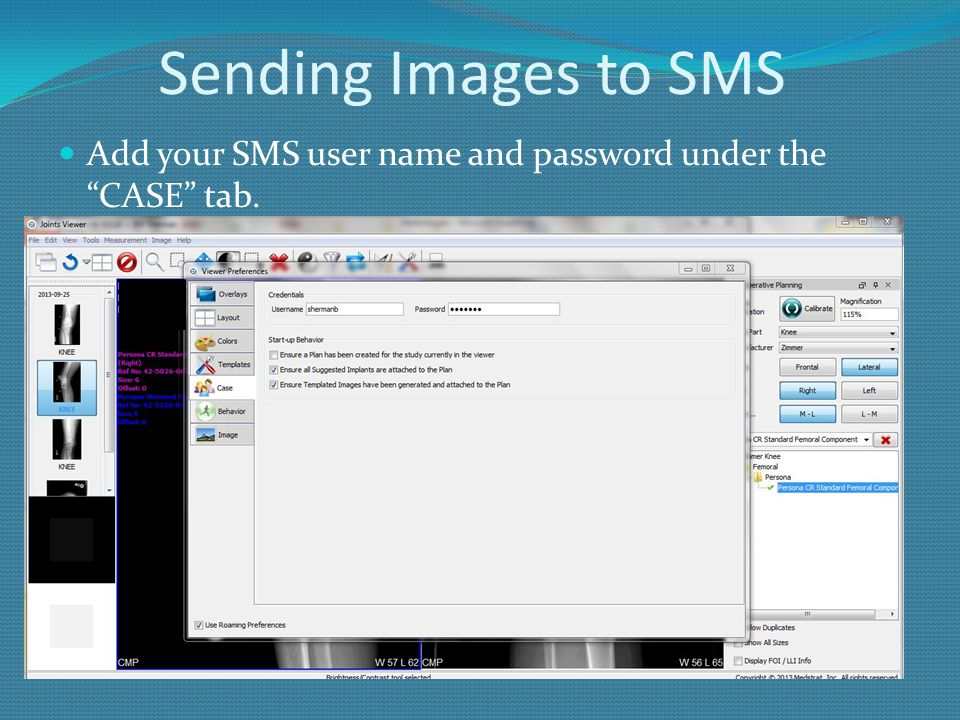 """Sending Images to SMS Add your SMS user name and password under the """"CASE"""" tab."""