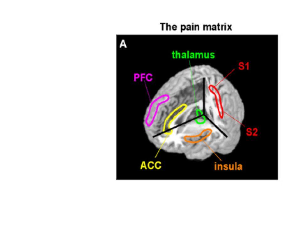 Chronic postoperative pain Kehlet et al. Lancet 2006; 367: 1618-25